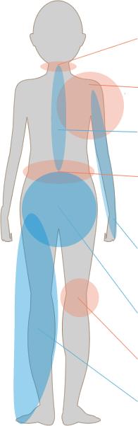 交通事故の人体模型図