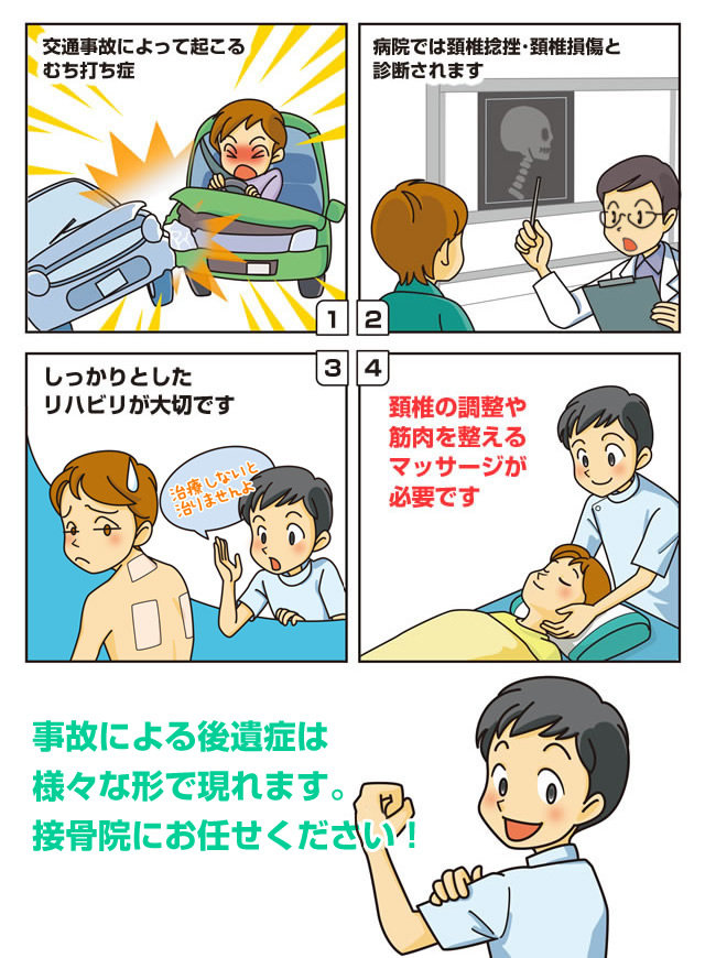 マンガで読む交通事故治療